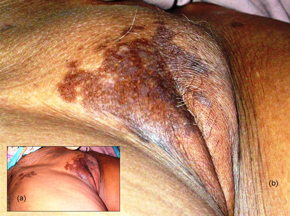 lichen planus pigmentosus-inversus with lesions on labia majora in, Human Body