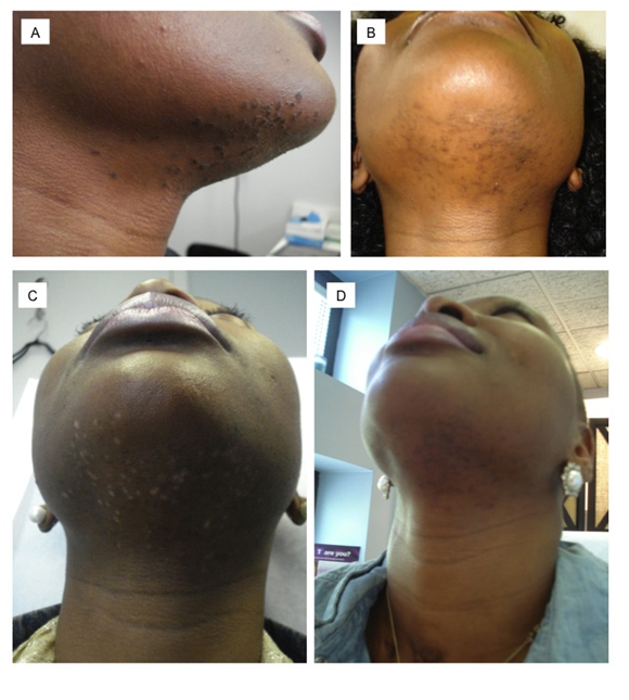 Laser Hair Removal Using A650 Microsecond Pulsed Nd Yag Laser A